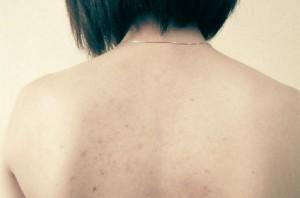 背中のシミ